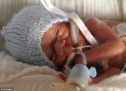 Зачем недоношенному ребенку виагра?