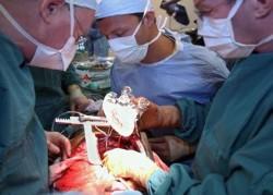 Кардиологи подарили больному на День Святого Валентина сердце... искусственное