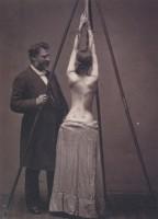Доктор Льюис Сейр лечит сколиоз., 1870–е, США