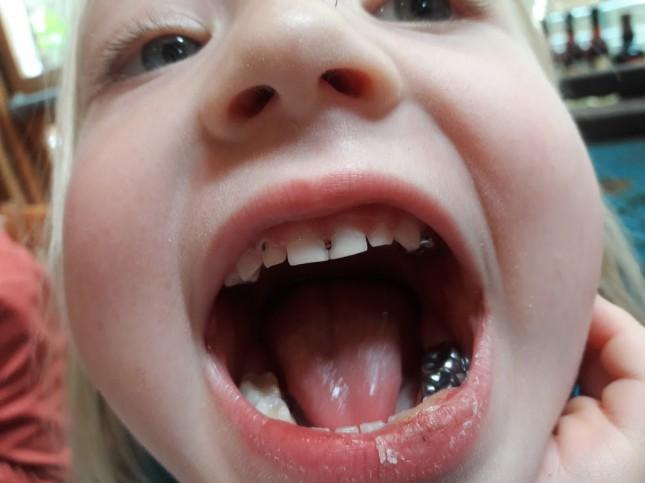 Зубы - это отдельная песня американской медицины.